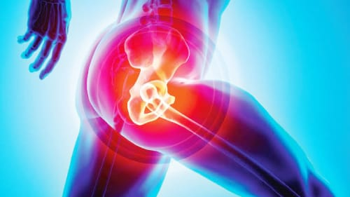 Best Hip Replacement in Lahore