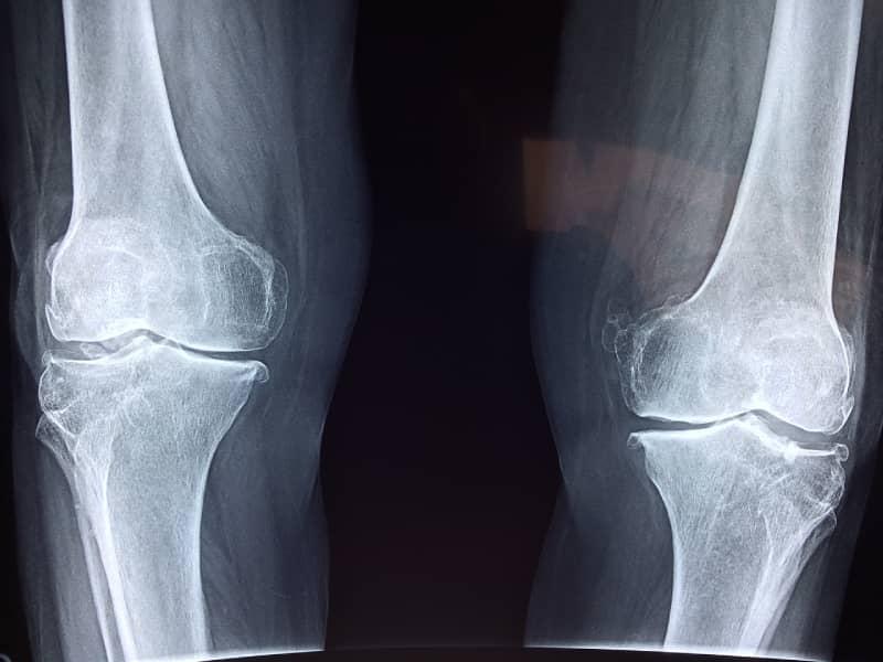 knee pain orthopedic doctor in Lahore
